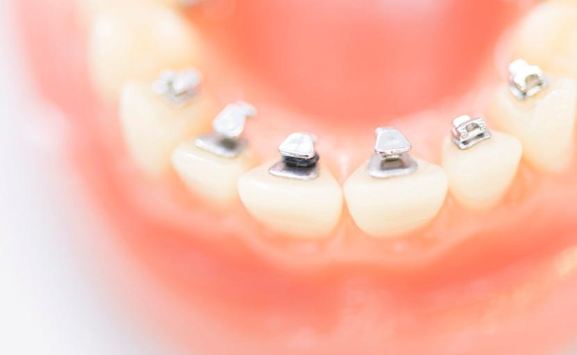 大人の歯科矯正・成人矯正